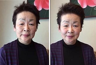 美顔コースで小顔・リフトアップ1